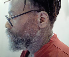 Mumia is gravely ill--demand he be taken to a hospital now!